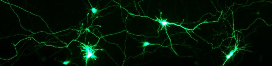 Transfection of Rat primary hippocampal neurons with NeuroMag