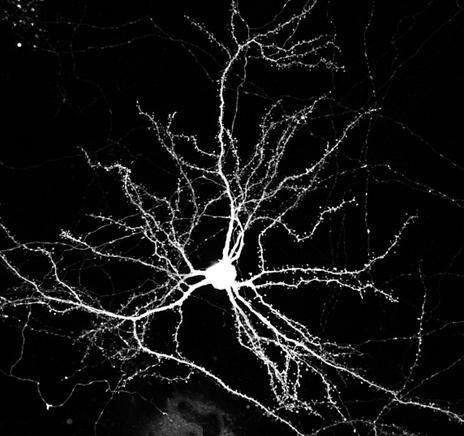 Mouse Cortical Neuron expressing GFP - Neuron Transfection